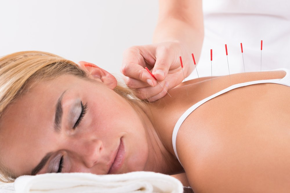 3 Therapeutic Reasons To Try Acupuncture